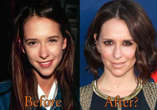 Jennifer Love Hewitt Plastic Surgery