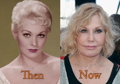 Kim Novak Plastic Surgery Picture