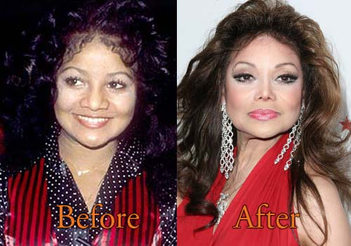La Toya Jackson Bad Plastic Surgery