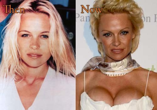 Top Celebrity Surgery Page 17 Of 27 Celebrity Plastic