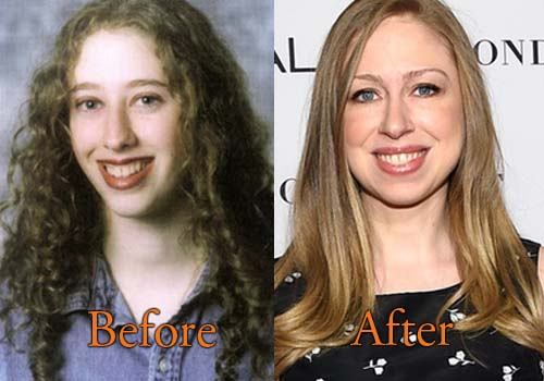 Chelsea Clinton Plastic Surgery Before And After Nose Job