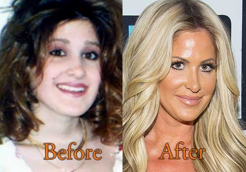 Kim Zolciak Plastic Surgery