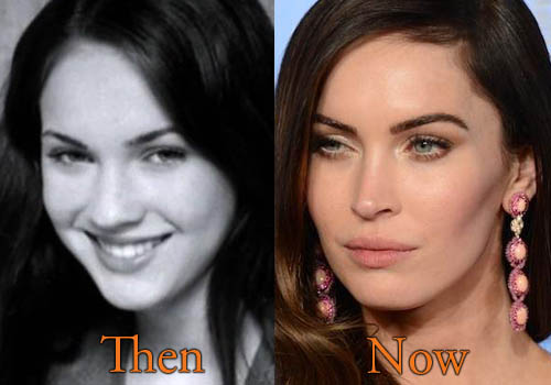 Megan Fox Nose Job, Botox