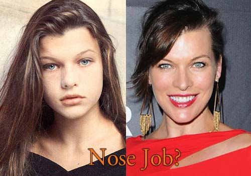 Milla Jovovich Nose Job
