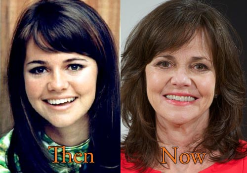 Sally Field Facelift