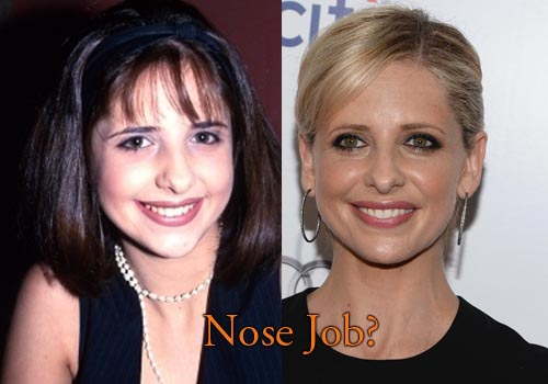 Sarah Michelle Gellar Nose Job