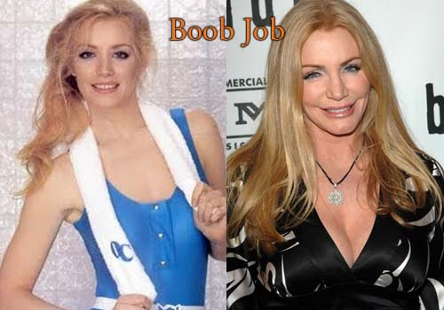 Shannon Tweed Breast Implants