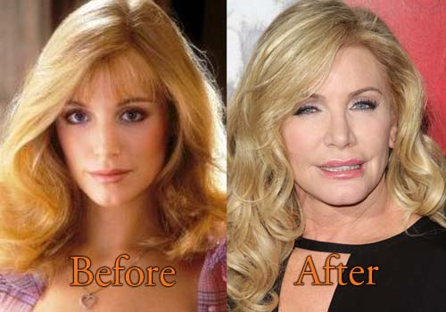 Shannon Tweed Plastic Surgery