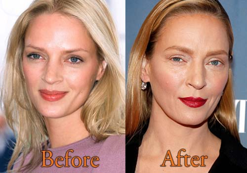 Uma Thurman Plastic Surgery Before and After Pictures ...