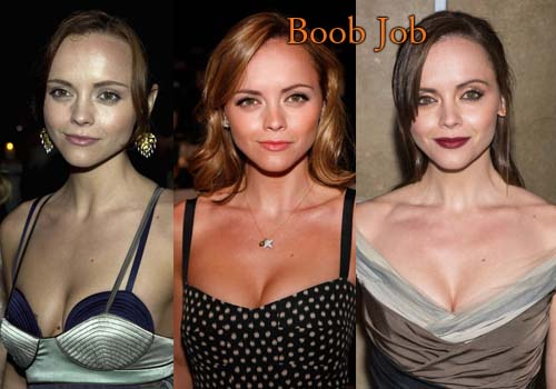Christina Ricci Breast Implants