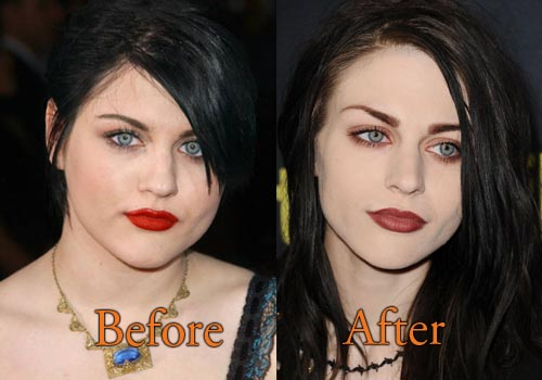 Frances Bean Cobain Plastic Surgery Picture