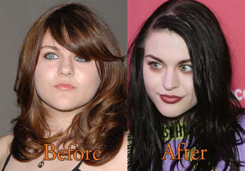 Frances Bean Cobain Plastic Surgery
