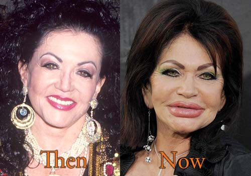 Jackie Stallone Filler Injection