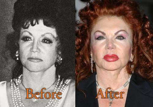 Jackie Stallone Plastic Surgery