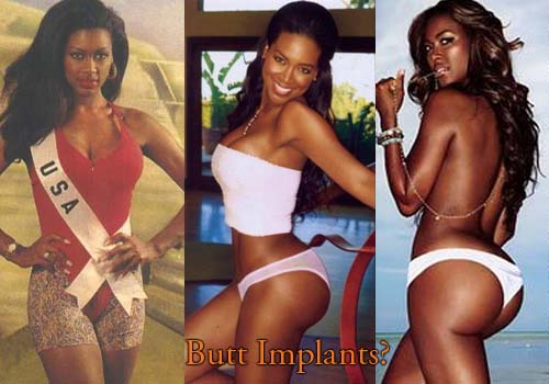 Kenya Moore Plastic Surgery Butt Implants