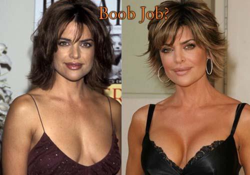 lisa rinna boob job