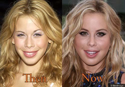 Tara Lipinski Cheek Surgery, Botox