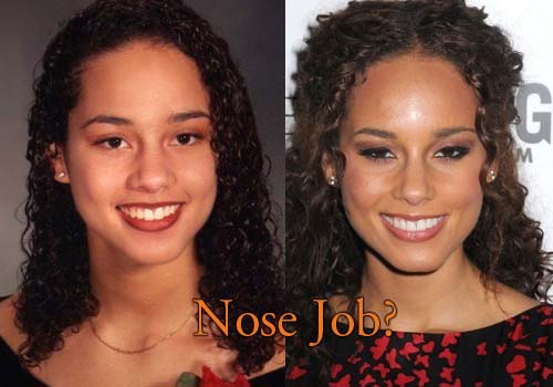 Alicia Keys Nose Job