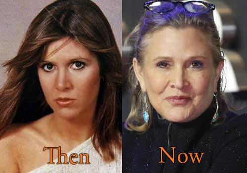Carrie Fisher Facelift, Botox