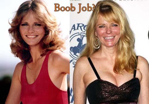 Cheryl Tiegs Boob Job