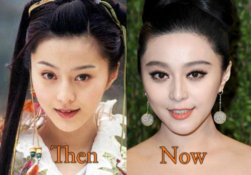 Fan Bingbing Plastic Surgery