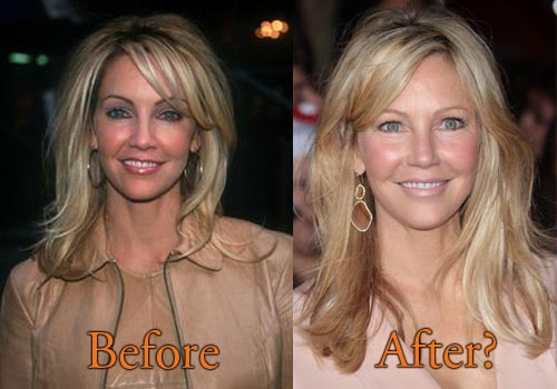 Heather Locklear Plastic Surgery Before After Facelift