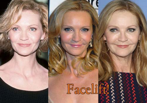 Joan Allen Facelift