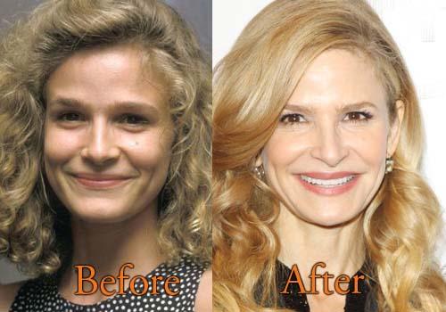 Kyra Sedgwick Plastic Surgery A Good Facelift Before