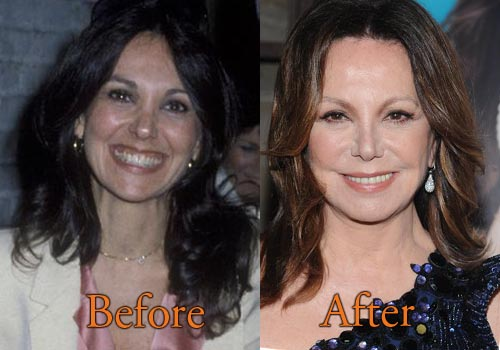 Marlo Thomas Facelift, Botox