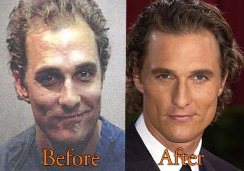 Matthew Mcconaughey Plastic Surgery Of Hair Transplant Botox