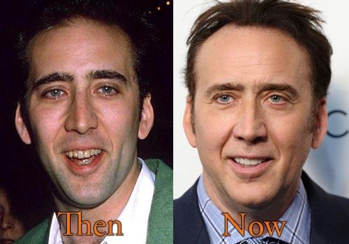 Nicolas Cage Botox
