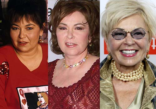 Roseanne Barr Plastic Surgery