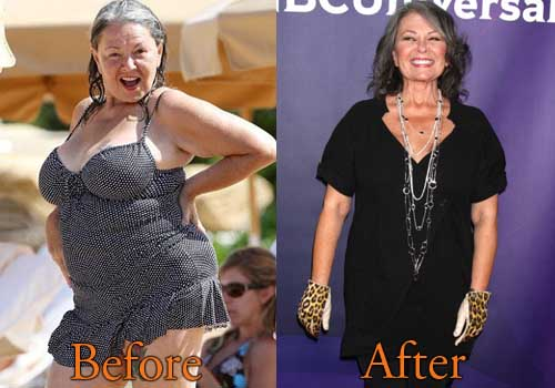 Roseanne Barr Weight Loss, Tummy Tuck