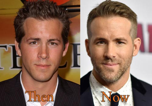 Ryan Reynolds Botox