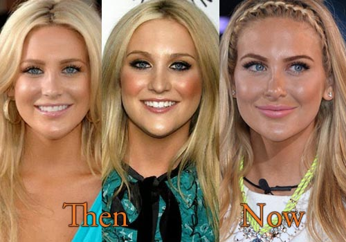 Stephanie Pratt Plastic Surgery Picture