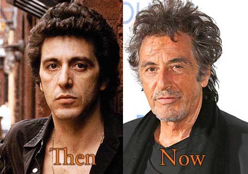 Al Pacino Facelift