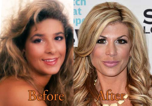 heather dubrow plastic surgery before and after photo