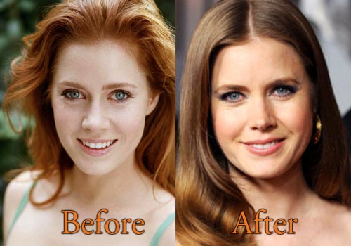 Amy Adams Plastic Surgery