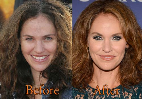 Amy Brenneman Plastic Surgery Before And After Botox Pictures