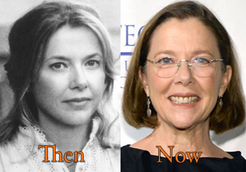 Annette Bening Plastic Surgery Picture
