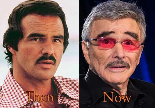 Burt Reynolds Facelift, Botox