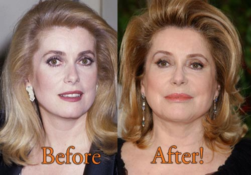 Catherine Deneuve Plastic Surgery