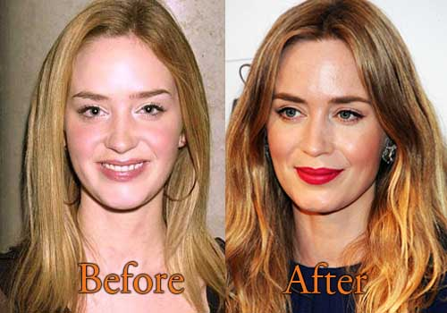 Emily Blunt Plastic Surgery, Before and After Pictures ... Christina Ricci Age