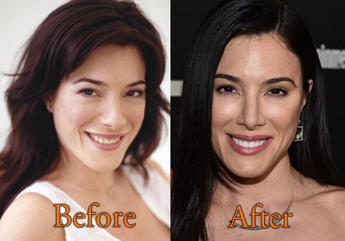 Jaime Murray Plastic Surgery Picture
