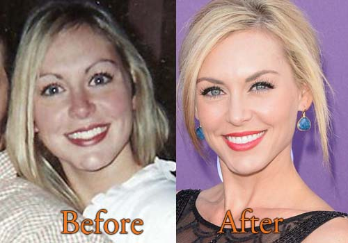 Jessica Robertson Plastic Surgery Picture