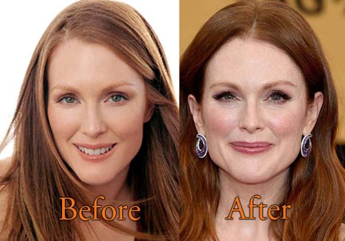 Julianne Moore Facelift
