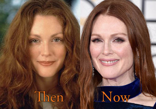 Julianne Moore Plastic Surgery