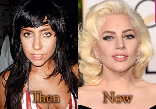 lady gaga plastic surgery photos