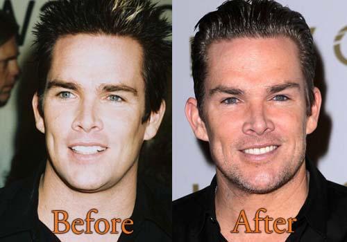 Mark McGrath Plastic Surgery