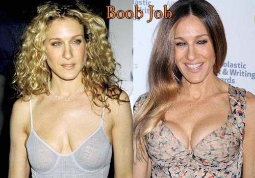 Sarah Jessica Parker Breast Implants
